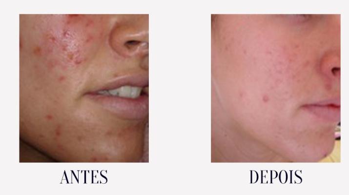 acne estrela